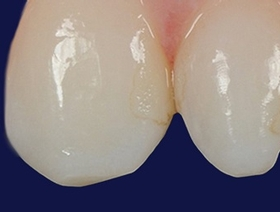 Esthetic Peg Lateral & Class III Direct Restorations, with Dr. Marcos Vargas