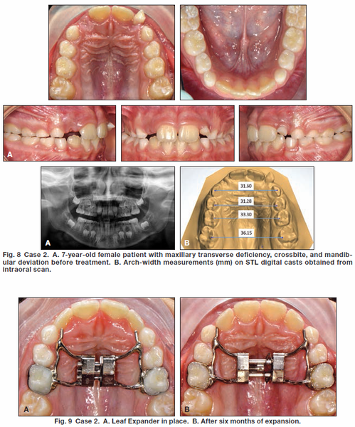 The Leaf Expander for Non-Compliance Treatment in the Mixed Dentition