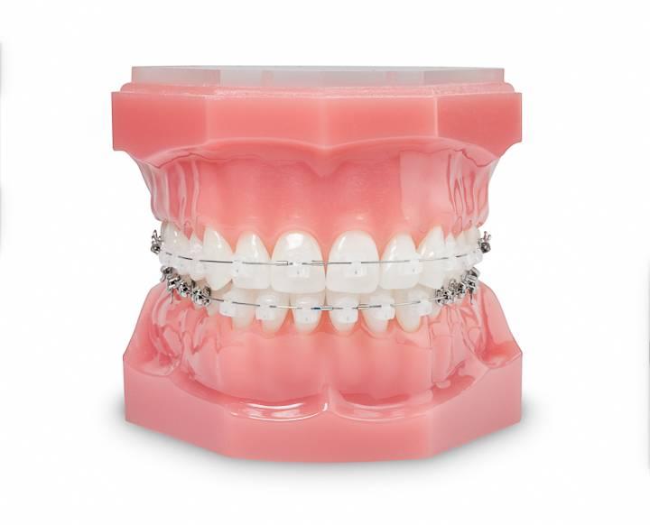 Fournitures orthodontiques